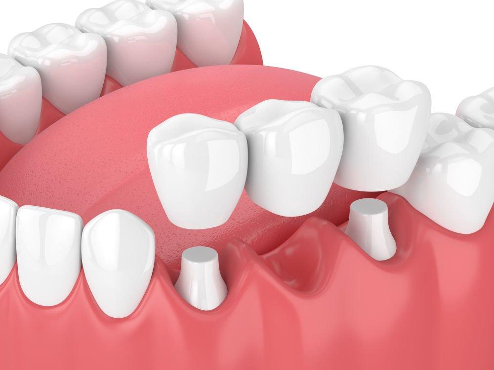 dental bridge uxbridge