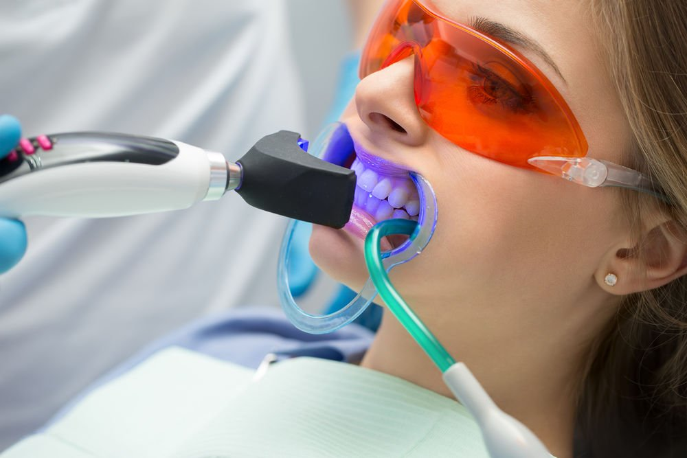 teeth whitening uxbridge